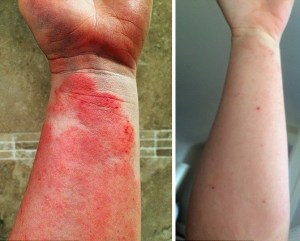 Girl Cures Her Severe Eczema With 80 Raw Food Diet Healing With