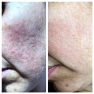 Before - After 3 - Heal NJ
