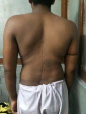 md-kutubuddin-scoliosis-img_5182-768x1024