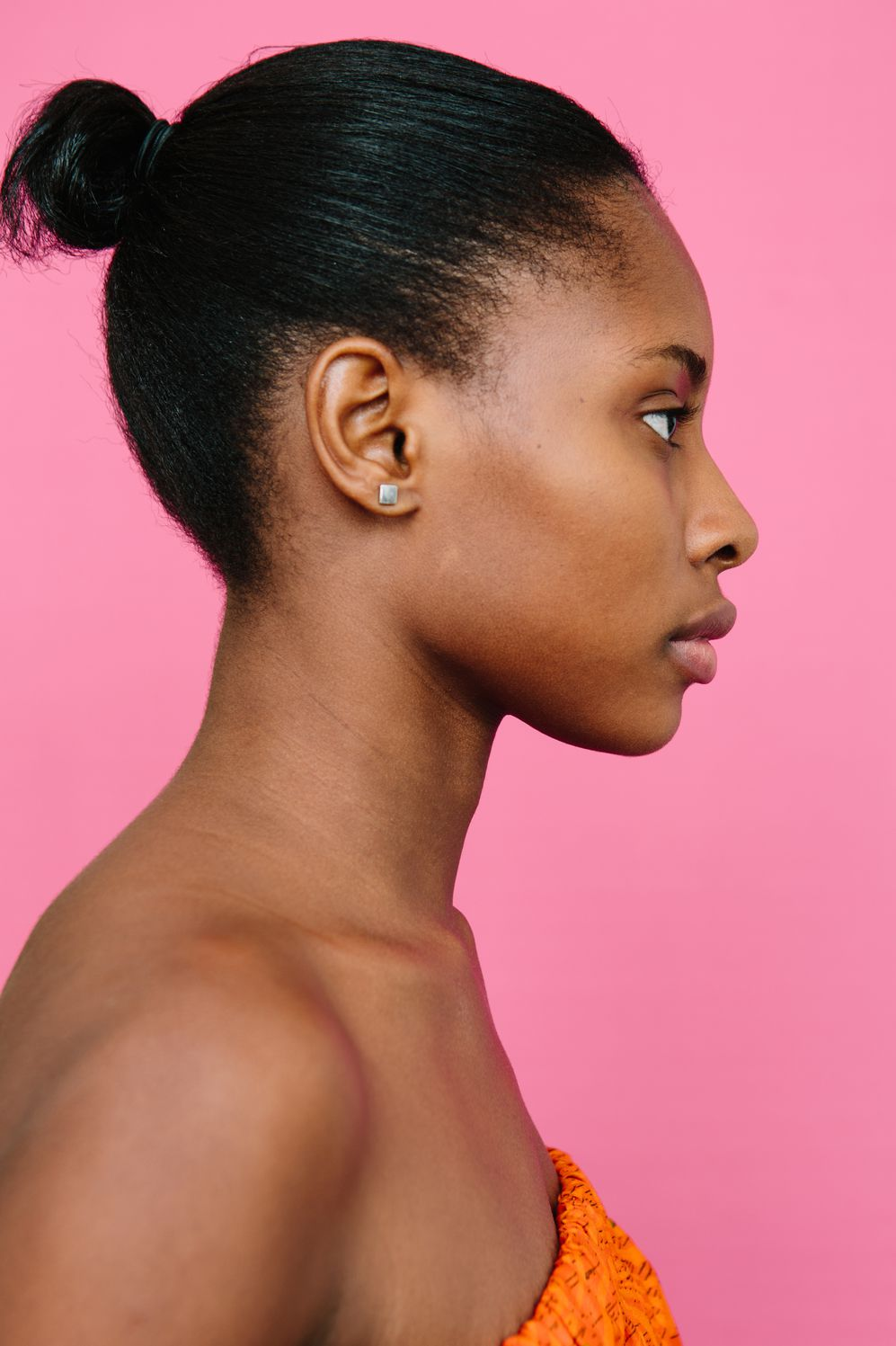 What Nobody Tells You About Using Acne Products on Black Skin