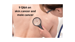 9 Q&A on skin cancer and mole cancer