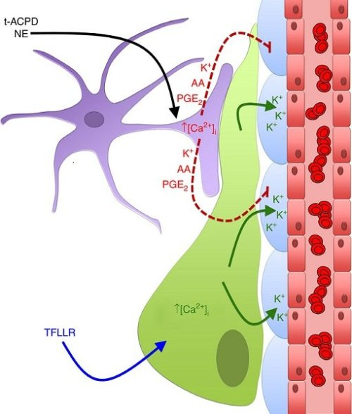 Perivascular glioma cells disrupt astrocyte-mediated vascular coupling. The perivascular glioma cell (green) inserts itself between the VSMCs (blue) surrounding the vascular endothelial cells (red), displacing the astrocytic endfeet (purple). Bath application of NE and t-ACPD activates astrocytic G-protein-coupled receptors causing an increase in astrocytic [Ca2+]i. Due to perivascular glioma cell displacement of the astrocytic endfeet, astrocyte-released vasoactive molecules (AA, PGE2 and K+) can no longer reach the VSMCs to cause alterations in the vessel diameter. Glioma cell PAR1 activation by the artificial ligand, TFLLR, causes increases in glioma cell [Ca2+]i, which activates Ca2+-activated K+ channels. Glioma efflux of K+ onto VSMCs causes vasoconstriction of the arterioles.  Sontheimer et al 2014.