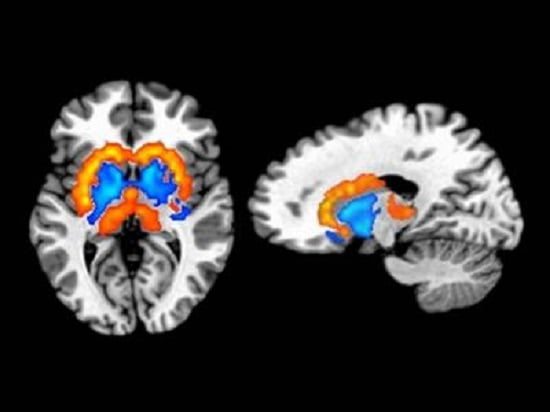 Dopamine signaling is thought to play a central role in orchestrating the processes of reward, motivation and habit formation. The depicted orange/yellow regions indicate where brain dopamine activity was positively related to obesity. These areas include the dorsolateral striatum which mediates the process of habit formation. The blue regions show where dopamine activity was negatively related to obesity and includes the ventromedial striatum, a brain region that controls reward and motivation.  Credit: Juen Guo, Ph.D. and W. Kyle Simmons, Ph.D.