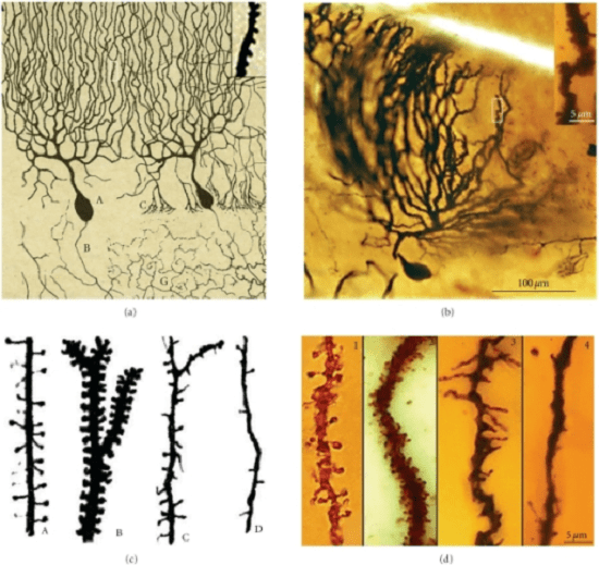 (a) Represents the first Cajal scientific drawing showing dendritic spines from a Purkinje cell of the hen, 1888. Inset shows dendritic spines digitally enlarged of the boxed region. (b) Purkinje cell and dendritic spines (inset) of the adult bird cerebellum taken from a Cajal's histological preparation stained following the Golgi method. (c) drawing by Cajal [5] showing dendritic spines of pyramidal (A), Purkinje (B), basket (C) and Golgi cells (D). (d) dendritic spines and filopodia taken from Cajal histological preparations, and Golgi impregnation; 1, dendritic spines, pyramidal cell, parietal cortex, one-month-old human; 2, dendritic spines, Purkinje cell, adult cat cerebellum; 3, dendritic filopodia and spines, basket cell, cerebellum, of 17-day-old dog; 4, Golgi cell dendrite, cerebellum, of 17-day-old dog.  Freire et al 2011.