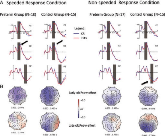 A) Grand mean event-related potential (ERP) waveforms and (B) scalp topographies of the mean amplitude measures for early and late ERP effects separately for each response condition and child group. The arrows denote the early (familiarity) effects in both groups in the speeded condition and the late (recollection) effect in the nonspeeded condition which was present for the control group only. CR = correct rejection.   Modifications of Recognition Memory Processes in Preterm Children: An Event-Related Potential Study.  Gortner et al 2014.
