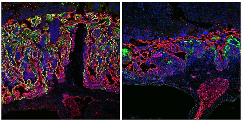 Development of the placenta of a mouse The placental labyrinth forms the interface between the blood circulation of the embryo (bottom) and the mother (top). Two of its cell layers are immunofluorescence-stained in red and green, respectively. In the left image the labyrinth is normally developed. In the right image the labyrinth is compact and its branching is impaired, because the gene regulator Grhl2 was inactivated.  (Photo: Katharina Walentin/Copyright: MDC)