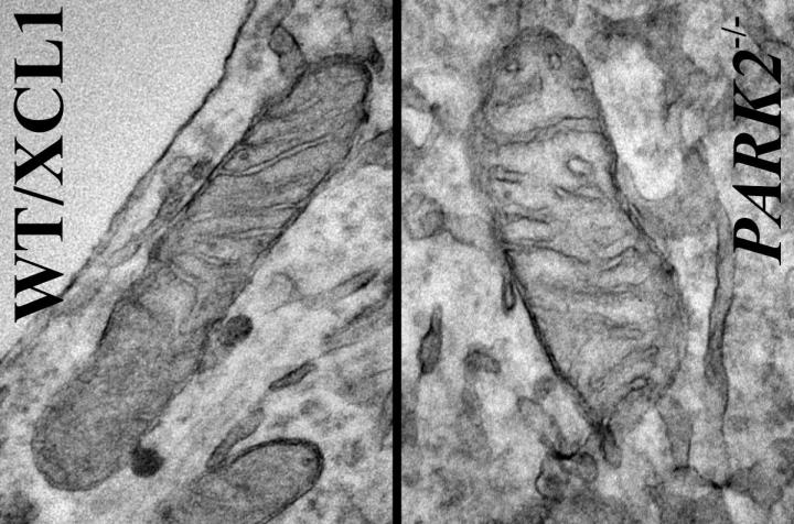"""Images are of mitochondria from iPSC-derived dopaminergic neurons. The neuron on the left is from a """"normal"""" or control iPSC line; the neuron on the right was derived from the same (isogenic) iPSC line but carrying a Park2-null mutation, the most common mutation for Parkinson's disease.  Credit:  Courtesy of Akos Gerencser, PhD."""