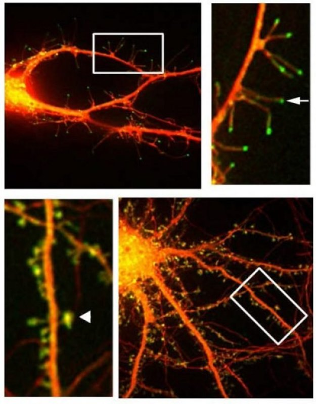 This is a fluorescent microphotograph of neurons that shows filapodia extending out from dendrite.  Credit:  (Courtesy of Webb Lab / Vanderbilt).