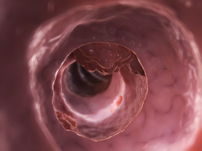 Study shows colorectal cancer genetically different in older and younger patients - healthinnovations