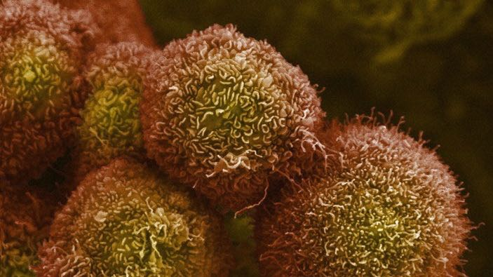 Scientists discover electrical control of cancer cell growth - healthinnovations