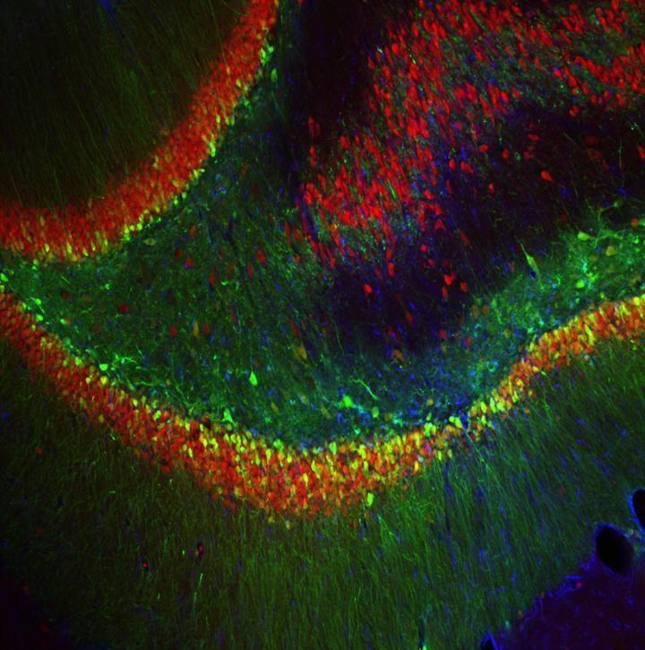 Brain Cells with Blocked FGF9 Production.  The green cells show where the researchers used an injected virus to block production of FGF9 in rat brains, and reduce anxiety-like behavior.  Credit: University of Michigan - Akil laboratory.