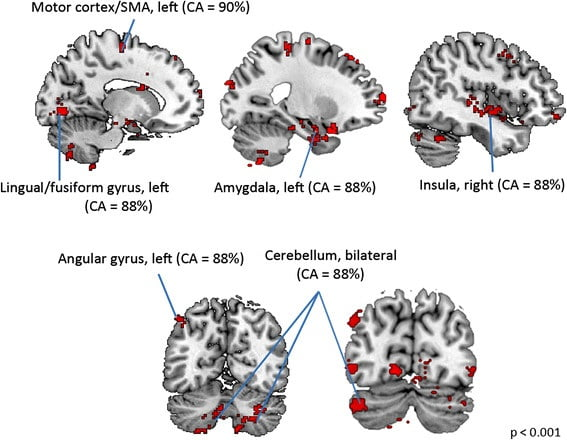 "Sex differences in brain morphometry in childhood autism. Girls and boys with ASD showed significant differences in brain structure. Notably, brain areas which showed sex differences in ASD fell into two general functional systems: the motor system and systems that form part of the ""social brain."" These brain areas include the left motor cortex, left SMA, left lingual/fusiform gyrus, left angular gyrus, right insula, bilateral cerebellum, and bilateral amygdala. They showed high classification accuracies (CA > 85 %) for distinguishing girls from boys with ASD. CA value given for a set of contiguous voxels corresponds to the highest classification accuracy among those voxels.  Sex differences in structural organization of motor systems and their dissociable links with repetitive/restricted behaviors in children with autism.  Supekar and Menon Molecular Autism 2015."
