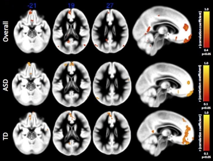 Imaging study demonstrates how the 'social brain' is functionally impaired in autism  - neuroinnovations