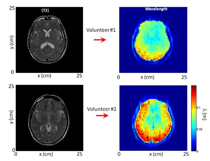 Comparison between two volunteers of (Left) the axial view of the T2-weighted image and (Right) its corresponding shear-wavelength tomography.  The tomography on volunteer 2 was acquired 1 mo after the one presented in the manuscript. Although in different regions of the brain, the similarity between reconstructions is striking.  Brain palpation from physiological vibrations using MRI.  Catheline et al 2015.