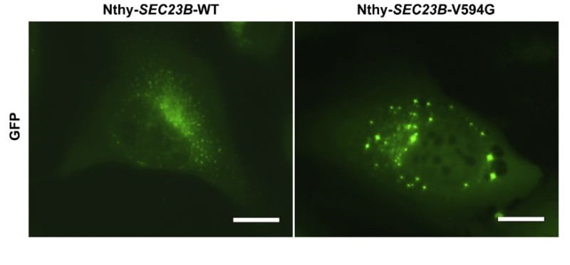 Cellular and Biochemical Characterization of Family 616 Variant p.Val594Gly in a Normal Thyroid Cell Line. Normal thyroid Nthy-ori 3-1 cells were stably transduced with wild-type and mutant c.1781T >G (p.Val594Gly) SEC23B fused with GFP. Wild-type cells (Nthy- SEC23B-WT) showed SEC23B localization typical of ER proteins, whereas a subset of mutantcells(Nthy-SEC23B-V594G) showed aberrant aggregation of SEC23B. Germline Heterozygous Variants in SEC23B Are Associated with Cowden Syndrome and Enriched in Apparently Sporadic Thyroid Cancer. Eng et al 2015.