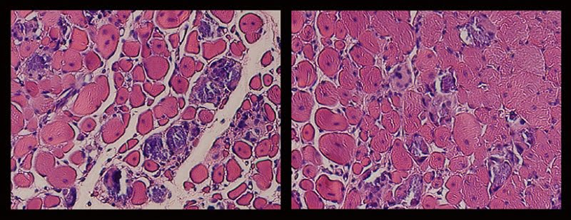 These side by side microscopic images reveal the dramatic effect that a novel mechanotherapy has on muscle regeneration over a period of two weeks: no treatment is pictured (left) in contrast to direct mechanical stimulation of the muscle (right). Developed by a multi-disciplinary team of Wyss Institute and Harvard SEAS faculty and researchers, the application of cylic mechanical stimulation of the injured tissue resulted in two-and-a-half-fold improvement in muscle regeneration, reduced tissue scarring and fibrosis, and a visible increase in the density of muscle cells. Credit: Wyss Institute at Harvard University.