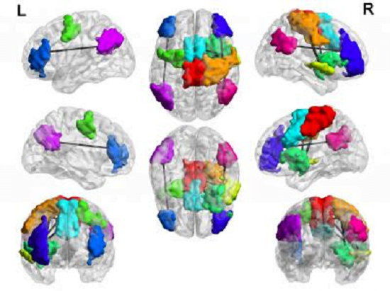 A new study led by the University of Utah School of Medicine and Chung-Ang University provides evidence that several regions of the brain are hyperconnected in adolescent boys diagnosed with Internet gaming disorder (lines between colored areas, colored areas represent specific brain networks). Some of the changes may help game players respond to new information, others are associated with distractibility and poor impulse control. Credit: Jeffrey Anderson.