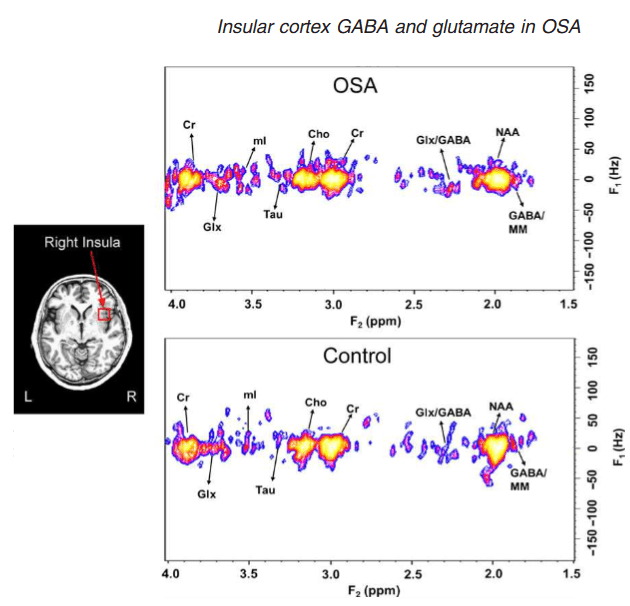 Left: example insula voxel is shown in red (15 mm3) overlaid an individual anatomical scan. Right: example two-dimensional magnetic resonance spectroscopy (2D-MRS) spectra from right insulae in obstructive sleep apnea (OSA) (56-year-old female) and control (53-year-old male) subjects, with resonances of various neurochemicals indicated (Cho, choline; Cr, creatine; mI, myo-inisotol; MM, other macromolecules; NAA, N-acetylaspartate; Tau, taurine).  Obstructive sleep apnea is associated with low GABA and high glutamate in the insular cortex.  Thomas et al 2016.