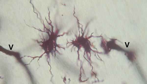 Two astrocytes and blood vessel profiles (V) are visible in this Golgi stain. Astrocytes have processes that may be long, slender, and relatively unbranched or short and highly branched. A large portion of the cerebral cortex is comprised of neuropil which includes the processes of both neurons and neuroglial cells. (Note: The cerebral cortex is comprised of six layers of cells, although the layers are not distinguishable with ordinary staining technics. Credit: Minnesota Veterinary Anatomy Courseware Web Site.