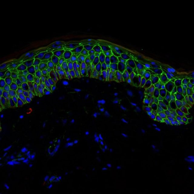 Section of the epidermis showing all its layers, with cell borders in green and cell nuclei in blue.