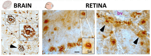 ft-clinical-study-shows-that-retinal-imaging-may-detect-signs-of-alzheimers-disease-neuroinnovations