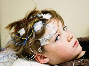 Oxcarbazepine associated with a nontraumatic fracture in children 4 to 13 years of age with epilepsy