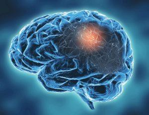 Neuroimaging provides useful volumetric measurements in frontotemporal lobar degeneration