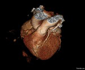 What Is A Heart CT Scan Health Essentials From