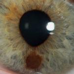 Eye-Melanoma