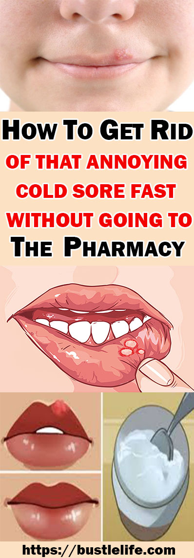 HOW TO GET RID OF THAT ANNOYING COLD SORE FAST WITHOUT GOING TO THE PHARMACY