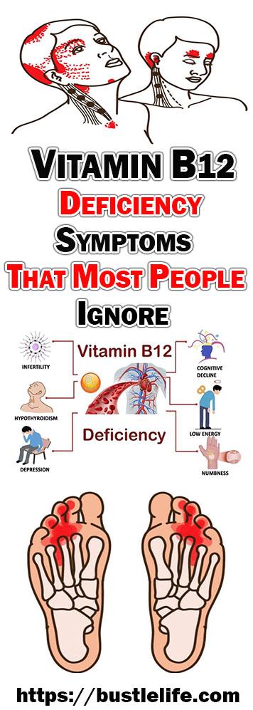 VITAMIN B12 DEFICIENCY SYMPTOMS THAT MOST PEOPLE IGNORE