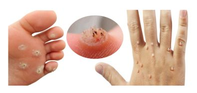 how-to-remove-warts-quickly-naturally