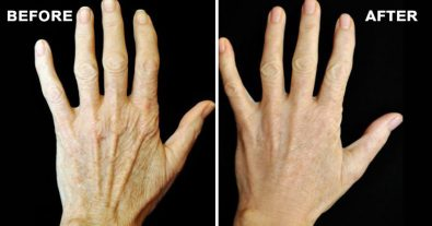 amazing-recipe-to-stop-your-hands-from-revealing-your-age