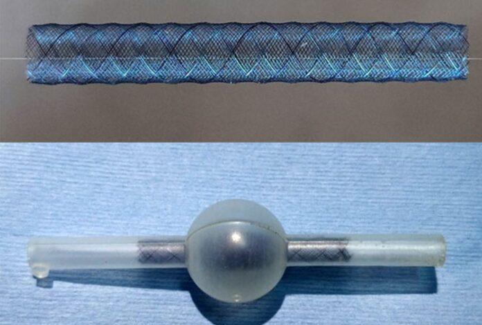 Affordable flow diverter stent in the offing