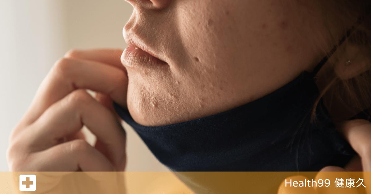 Read more about the article 英國醫學雜誌:「疫情造成口罩臉!」口罩相關痤瘡和臉部疾病研究
