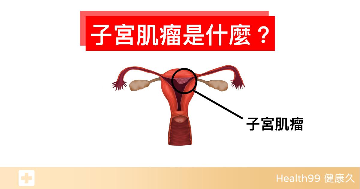 Read more about the article 子宮肌瘤是什麼?有哪些症狀?哪些體質的人容易長肌瘤?