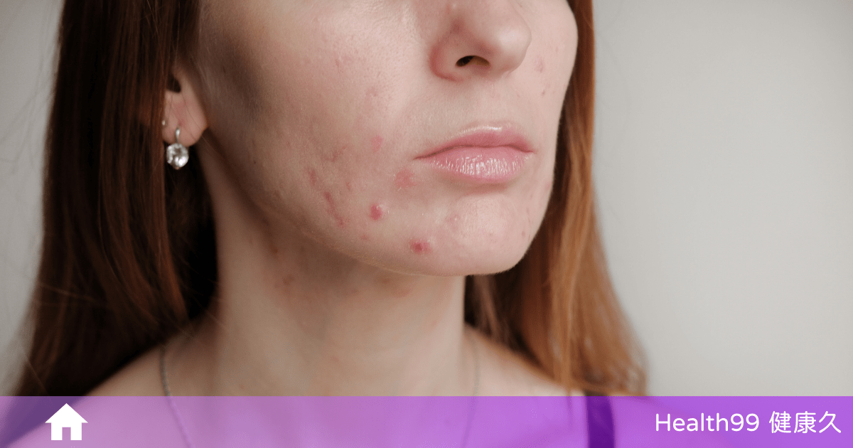Read more about the article 臉上這8個位置長痘痘,或暗示了不同的身體問題,請留意