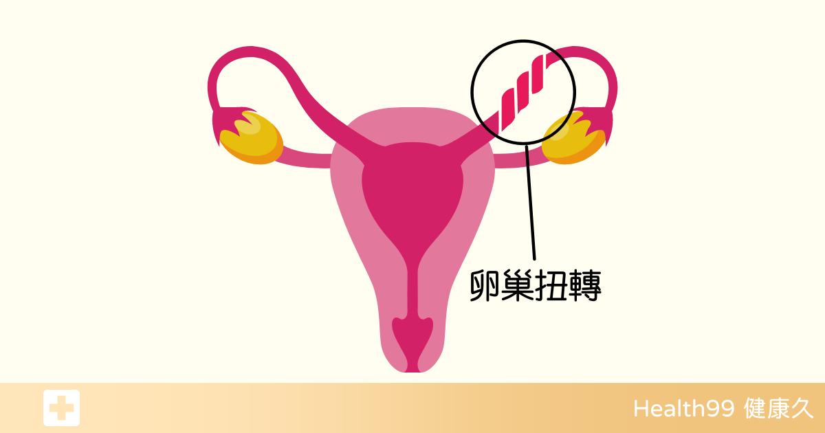 You are currently viewing 「卵巢扭轉」導致腹部劇痛!卵巢扭轉的發生原因及表現?又該如何避免呢?