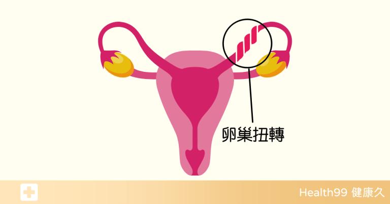 Read more about the article 「卵巢扭轉」導致腹部劇痛!卵巢扭轉的發生原因及表現?又該如何避免呢?
