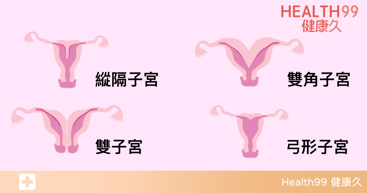 Read more about the article 子宮畸形還有機會懷孕嗎?醫生:看你是哪種畸形,這2種只能整形