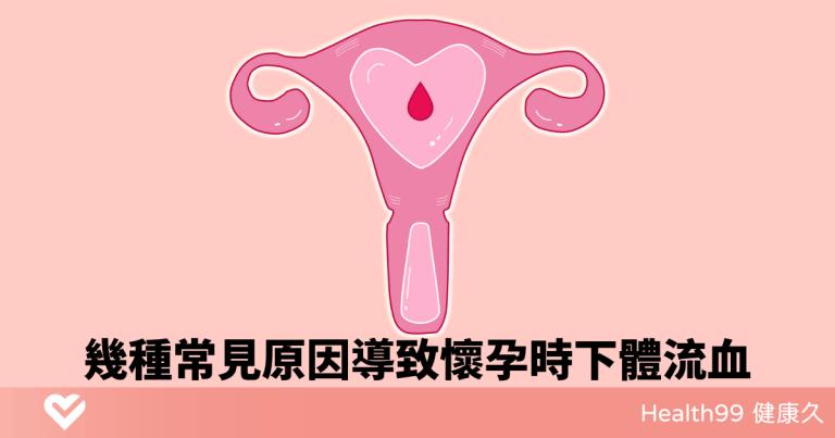 Read more about the article 孕期出血?幾種常見原因導致懷孕時下體流血!哪種情況需要立刻治療?