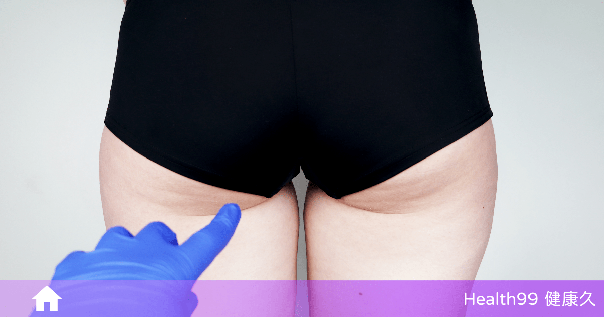 為什麼坐久了屁股兩側皮膚會「發黑」?該怎麼讓屁股白回來?