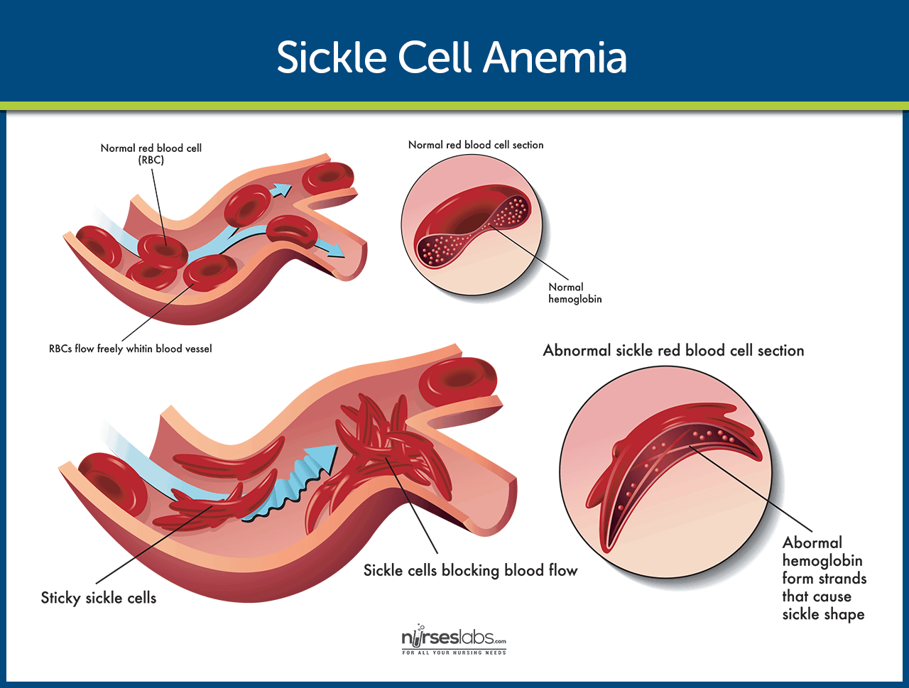 How to Prevent Sickle Cell Anemia How to Prevent Sickle Cell Anemia new foto