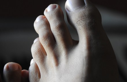The Most Common Foot Issues Solved