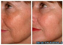 Skin Wrinkle