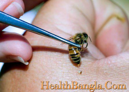 arthrities-bee-venom