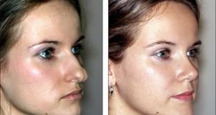 Rhinoplasty-Nose