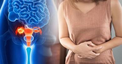 Cancer Uterus