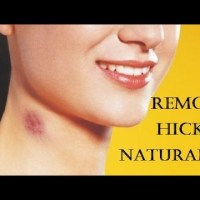 How to Remove Hickies