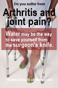 Arthritis and Joint pain infographics